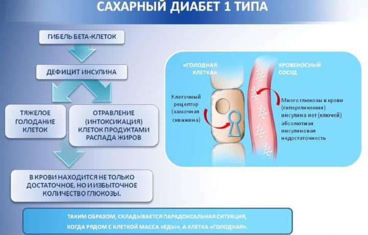 Схема диабета