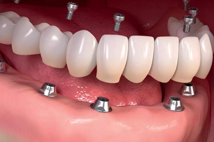 Процедура имплантации