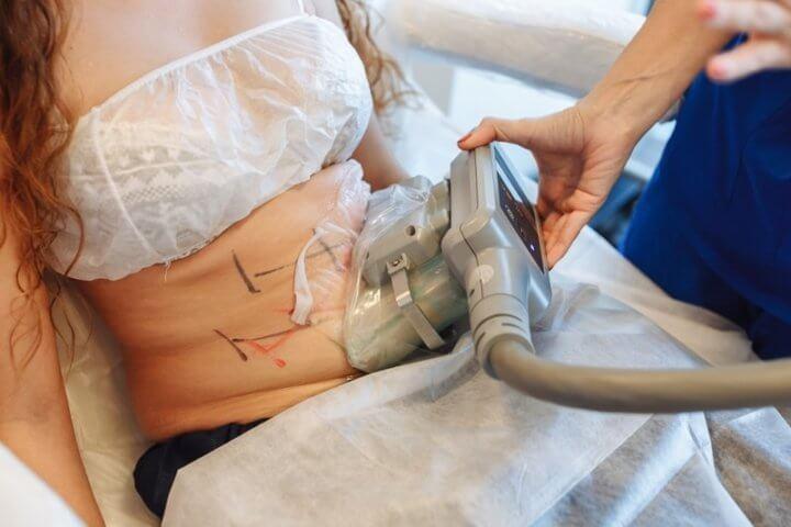 Процедура криолиполиза